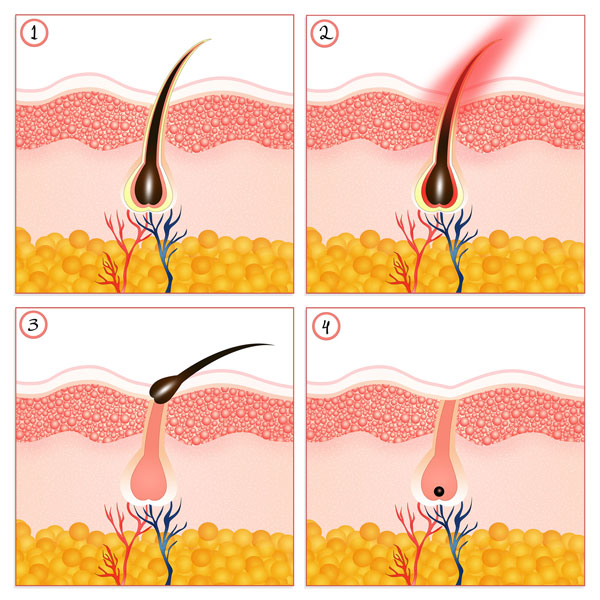 Dauerhafte und schmerzfreie Haarentfernung mit Lichtimpulsen